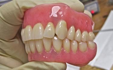 乳歯は弱い